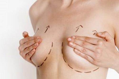 Peut-on associer le lifting et le lipofilling des seins ?