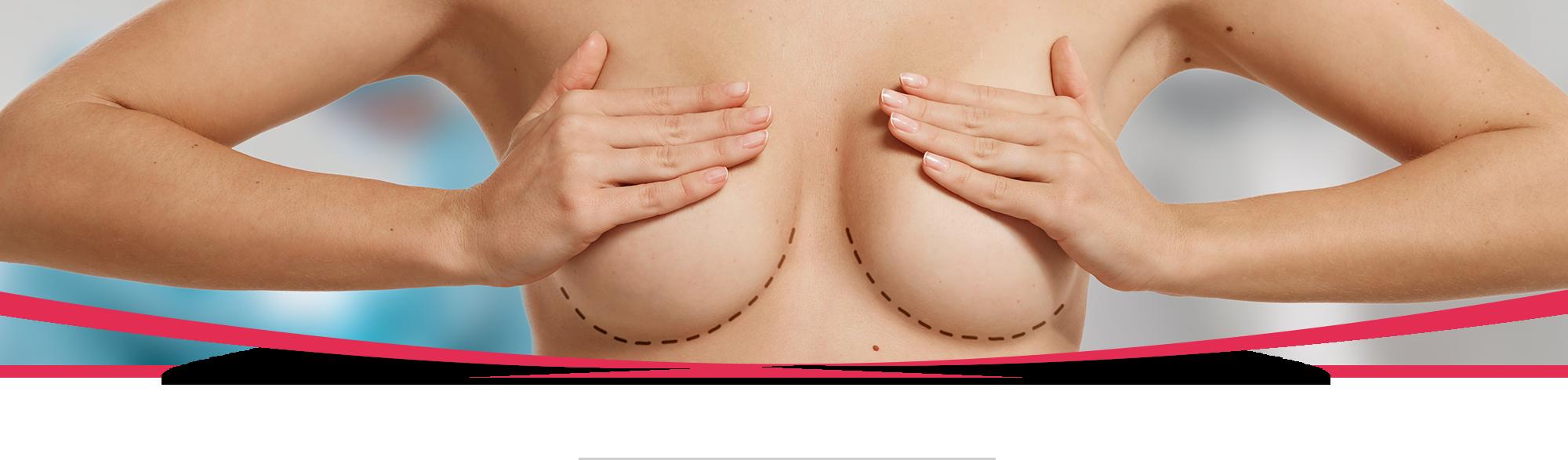 Chirurgie esthetique seinsslider