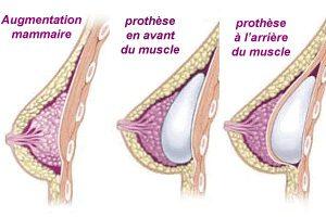 position de la prothèse mammaire