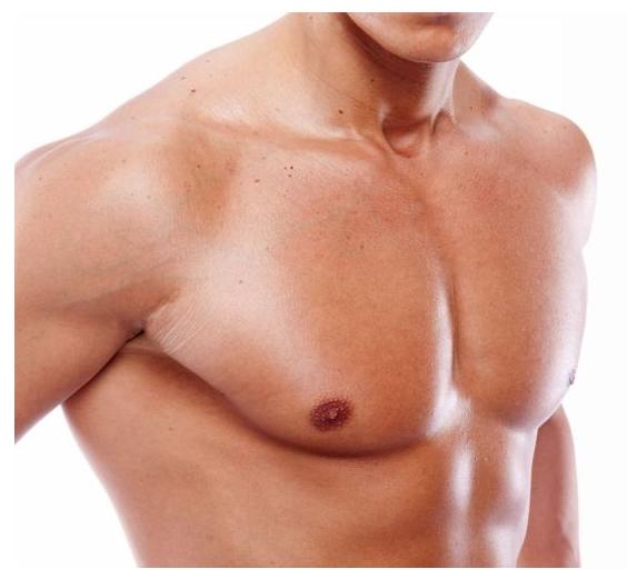 Les implants pectoraux