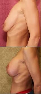 augmentation mammaire tunisie