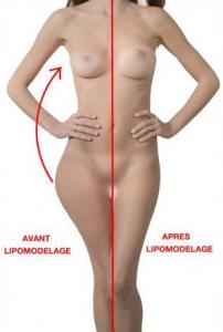 Lipofilling mammaire : moins de fesses et plus de seins