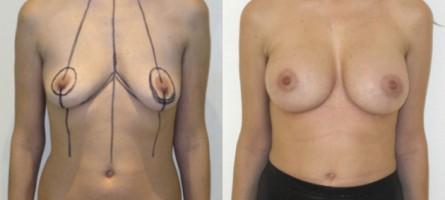 lifting mammaire avec implants