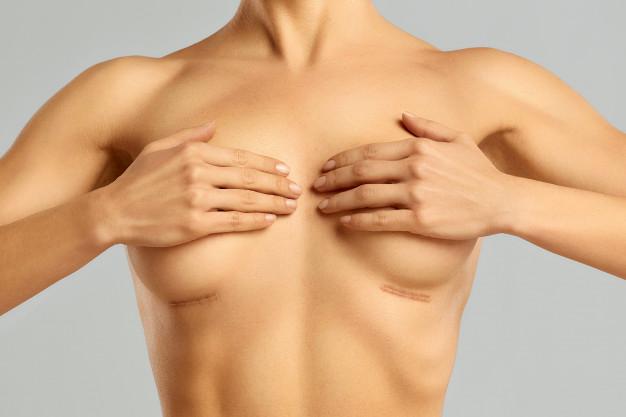 Conseils simples pour réduire les cicatrices après une opération de chirurgie esthétique