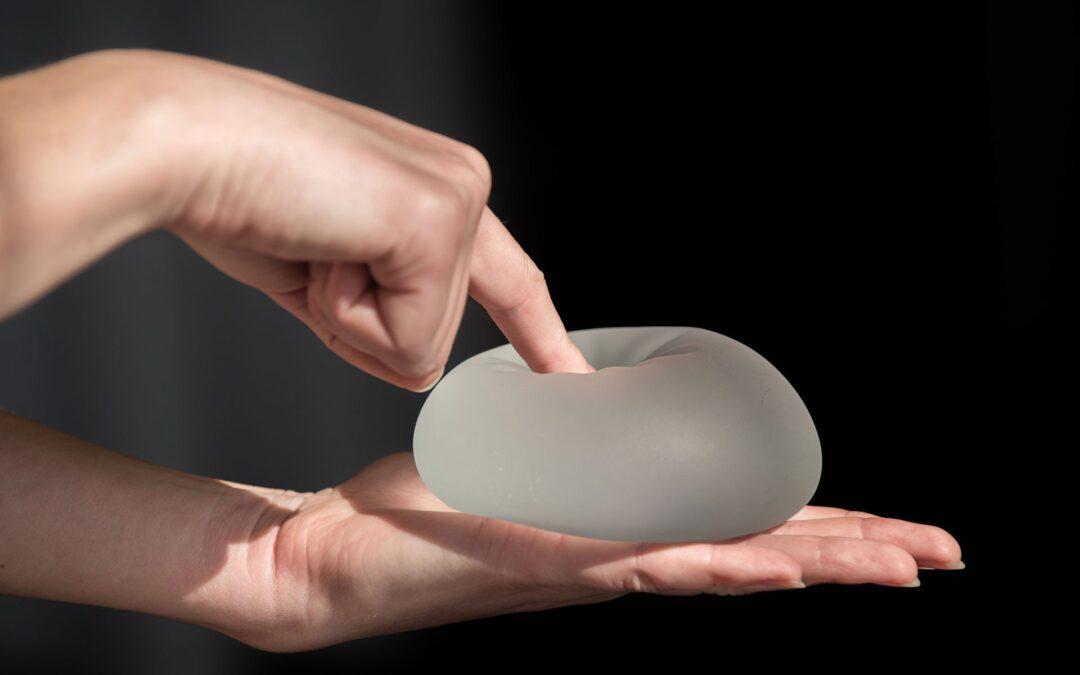 Les implants mammaires doivent-ils être remplacés ?