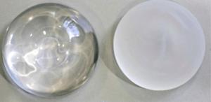 durée de vie implants mammaire