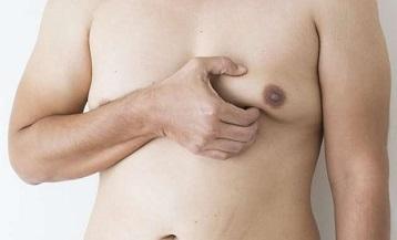 Objectif de la chirurgie de la gynécomastie