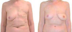 chirurgie de reconstruction mammaire